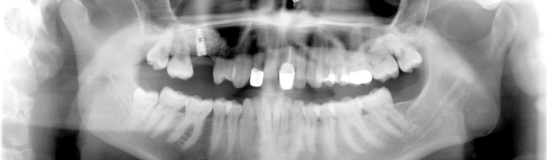 Knochenaufbau Sinuslift mit Zahnimplantat