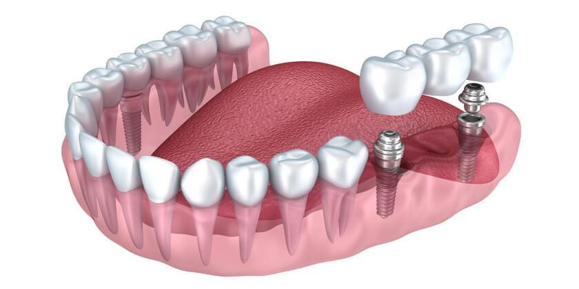 Zahnimplantate in Ungarn Aufbau